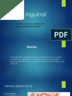 Hernia Inguinal Listo