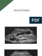USG Cholelithiasis