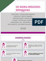 Cancer de Mama - Bailon Santiago