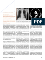 Cefalea vagal_bi060379.pdf