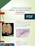 6ta,7ma y 8va Practica de Patologia Renal, Gu Masculino y