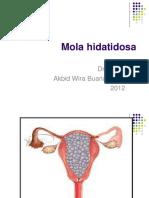 219354092-Mola-hidatidosa-ppt.ppt