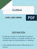 Ulceras Jack