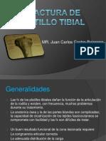 Fractura Platillo Tibial