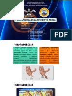 FisiopatologÍa de La Apendicitis Aguda
