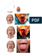 Technique Tongue Flap