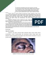 Etiologi Dan Patofisiologi Laserasi Duktus Lakrimal