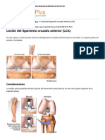 Lesión Del Ligamento Cruzado Anterior (LCA)_ MedlinePlus Enciclopedia Médica