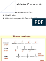 Caso Clinico Endocarditis