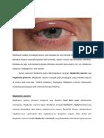 Blepharitis-aviciena