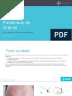 Problemas de Mamas