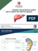 Retrohepatic Gallbladder Masquerading as Hydatid Cyst in A
