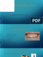 Aclaramiento Dental Interno