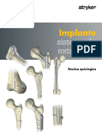 Implantes Sistema de Extracción