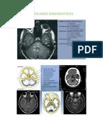 Sindrome de La Primera Neurona Motora o Sindrome Piramidal