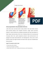 336844978-Beda-Stroke-Trombosis-Dengan-Stroke-Emboli.doc