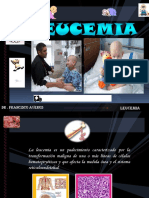 10 leucemia exposicion dr. averos..pptx
