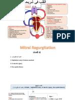 Mitral Regurgetation