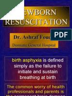 Newborn Resuscitation