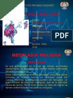 Neoplasia Maligna