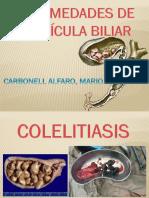 Ex VESICULA BILIAR.pptx