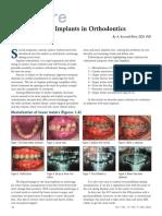 Micro Implants in Orthodontics