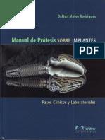 Manual de Protesis Sobre Implantes - Matos