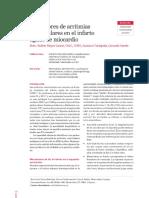 Predictores de Arritmias Ventriculares en El Infarto Agudo de Miocardio
