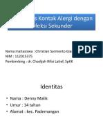 Case DKA Giam Demi Iship