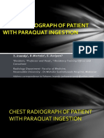 Eposter-chest Radiograph of Patient With Paraquat Ingestion