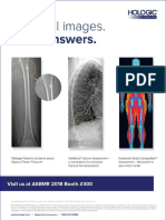 Hannan Et Al-2000-Journal of Bone and Mineral Research