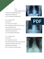 Tugas Radiologi Rayadi 12 Januari 2019