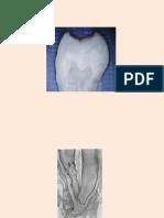 Abordarea clinică a spaţiului endodontic în funcţie de particularităţile morfo-funcţionale ale fiecărui dinte.pdf