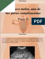 Isabel Rangel - Embarazo Molar, Una de Las Peores Complicaciones, Parte II