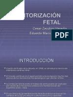 Monitorizacion Fetal