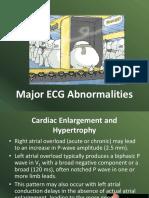 2 EKG Abnormal