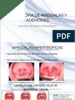 HIPERTROFIA DE AMÍGDALAS Y ADENOIDES.pdf