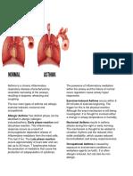 Ca1 Asthma 1
