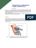 Sindromedeltunnelcarpale (1)