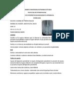 Descripción Radiografica dental
