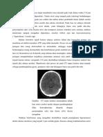 CT Scan Tanpa Kontras Dapat Mendeteksi Area Iskemik Pada Otak Dalam Waktu 3