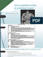Carcinoma Epidermoide de La Cavidad Nasal