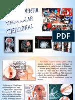 accidentulvascularcerebral-160925132111