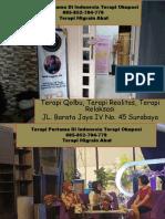 TERBAIK DI INDONESIA!!! 085–852–704–799 Terapi Okudasi