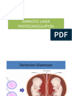 Amniotic Laser Photocoagulation
