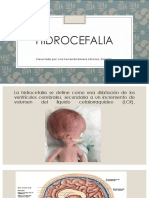 Hidrocefalia y Meningitis