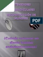RETENEDORES INTRARADICULARES RECONSTRUCCIÓN DE MUÑONES