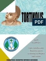Tortikolis