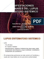 manifestacionespulmonaresdellupuseritematososistmico-130717192544-phpapp01