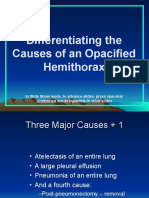 Opacified Thorax.ppt